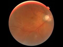 網膜剥離の眼底写真