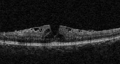 OCT装置で発見された黄犯偽円孔