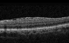 OCT装置で検出された網膜前膜①